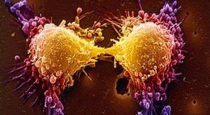 خمسة أنواع السرطان ا