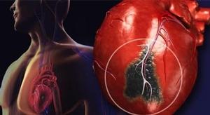 نصف النوبات القلبية