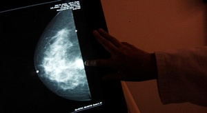للوقاية من سرطان الث